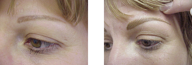 scar camoflauge with with permanent makeup