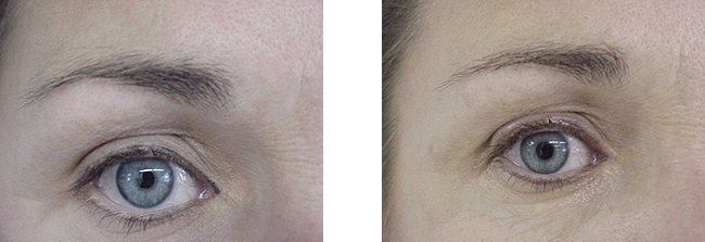 corrections in permanent makeup